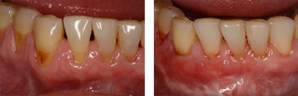 alpine periodontist before after
